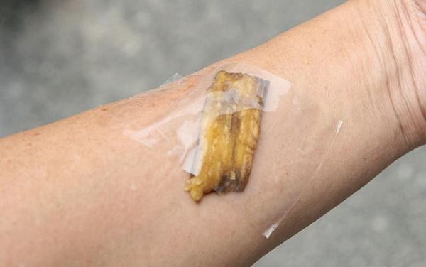 Image result for banana splinters