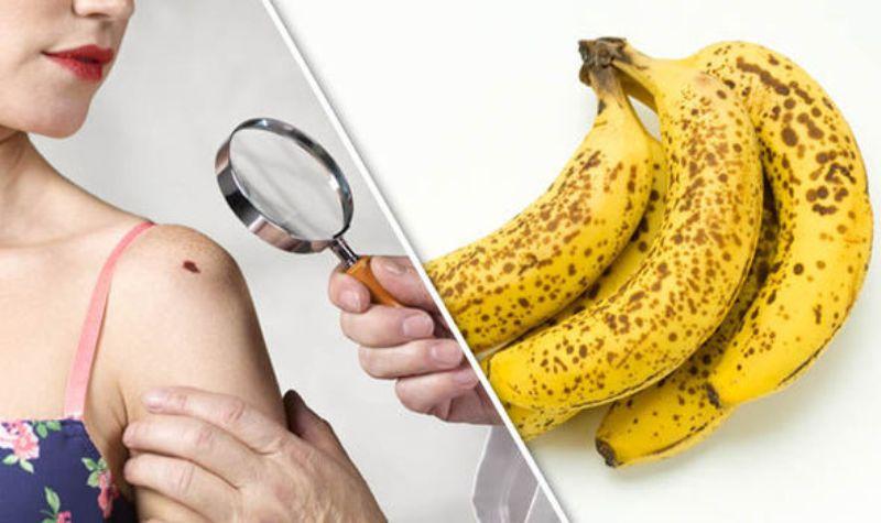 banana peel Disappears Bruises
