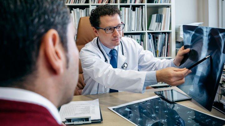 Image result for doctor lung cancer